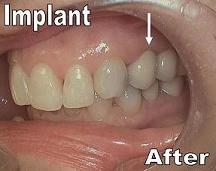 Single Implant After_F Neal Pylant_Periodontist_Athens Georgia