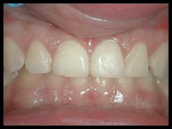 Gingivoplasty_F Neal Pylant Athens GA_Periodontics_Dental Implants